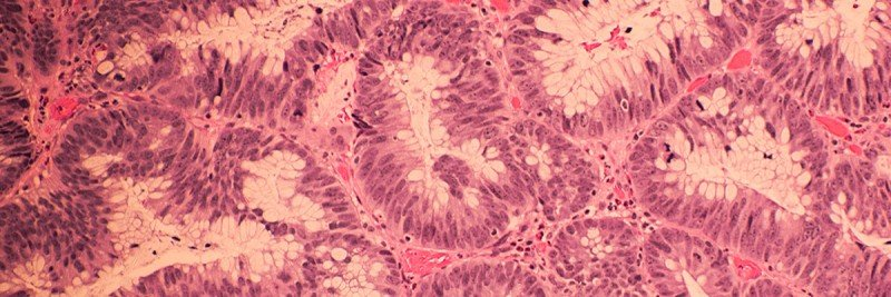 Colonic Adenocarcinoma with H&E Staining