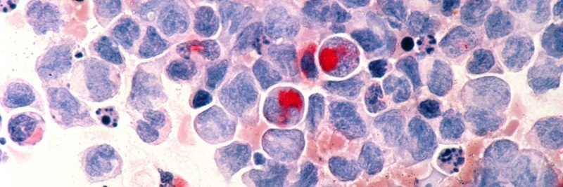 Light micrograph of white blood cells from a patient with acute myeloid leukemia.