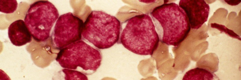 Microscopic view of blood cells from bone marrow in a case of acute myeloid leukemia