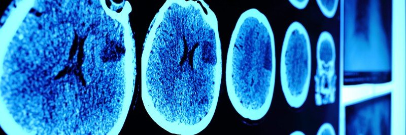 CT scans of brains