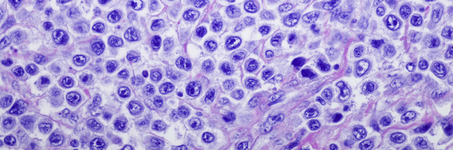Microscopic image of lymphoma cells stained purple.