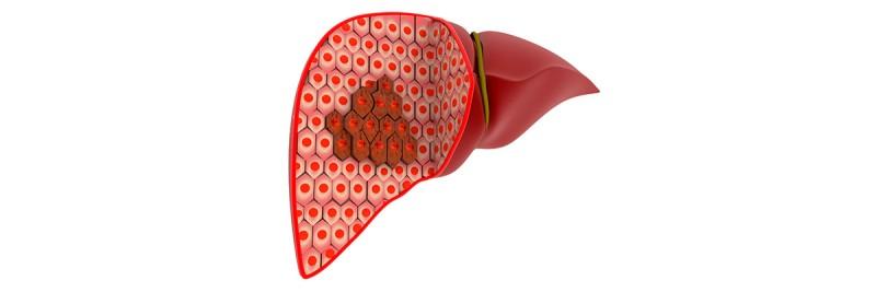 Colorectal Liver