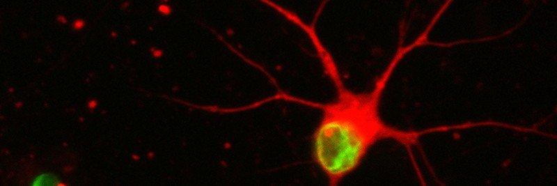 Pictured: Stem cell-derived nerve cells exposed to progerin